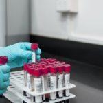 Утечка: озвучена новая версия появления коронавируса
