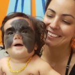 Мать девочки с огромным невусом поблагодарила россиян