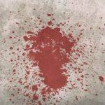 Страшно даже смотреть. Везде лужи крови. В Приморье обнаружен «концлагерь»