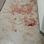 Прогремели выстрелы: в жилом комплексе во Владивостоке расстреляна женщина
